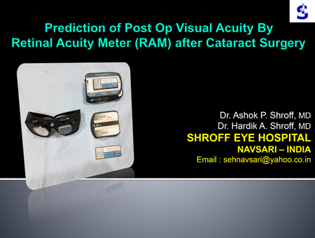 Prediction of Post Op Visual Acuity By Retinal Acuity Meter (RAM) after Cataract Surgery
